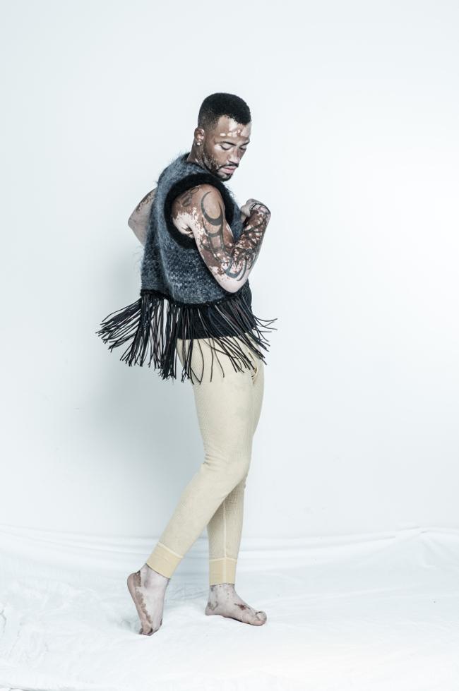 El abrigo de alpaca de alta costura de punto chaleco con flecos de cuero le ayuda a celebrar, como lo demuestra modelo vitiligo.