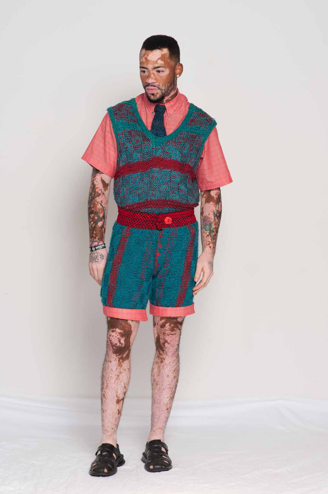 Vitiligo model wears his story in GSb Men's Couture, handknit milti-color outfit with vest, shorts, and tie.